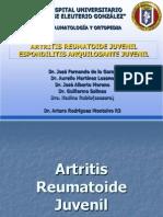 ArtritisReumatiodeJuvenilyEspondilisisAnquilosanteJuvenil