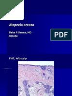 Alopecia Areata, F 67, Left Scalp. PPT
