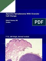 Apocrine Spiradenoma With Granular Cell Change, F 31, Left Thigh.