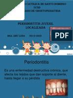 periodontitis juvenil localizada