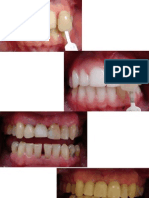 casosantesedepois-110627142628-phpapp02