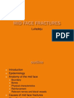 mid face fracture