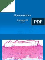 Herpes Simplex. PPT