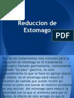 Reduccion de Estomago
