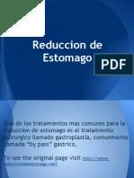 Reduccion de Estomago(2)