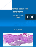 Pigmented Basal Cell Carcinoma. M 81, Back. PPT