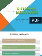 Distrofiasmuscular OSC