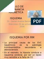 Isquemia Por Rm