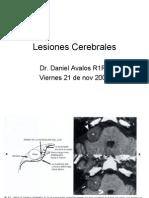 Lesiones Cerebrales