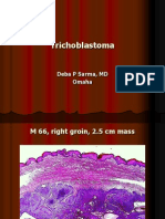 Trichoblastoma. M 66, Right Groin. PPT