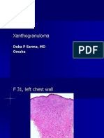 Xanthogranuloma. F 31, Left Chest Wall. PPT