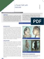 Unilateral Cranio-Facial Cleft with an Open Encephalocele