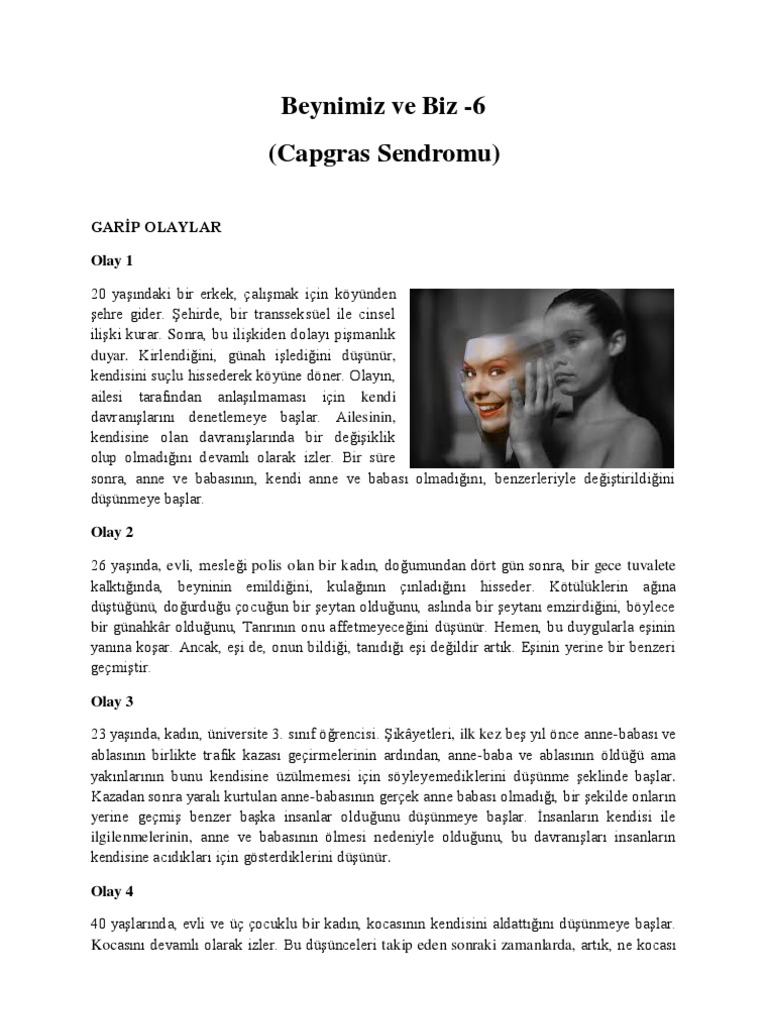 capgras essay Capgras syndrome news and research rss delusions associated with consistent pattern of brain injury a new study provides a novel theory for how delusions arise and why they persist.
