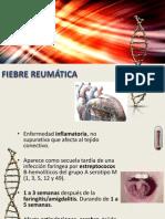 FIEBRE REUMÁTICA.pptx