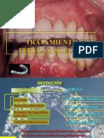 tratamientoconfrulasoclusales-coapazaorbezo-120626232201-phpapp01