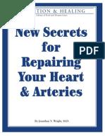 Heart_arteries