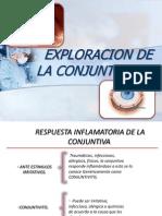Exploracion de La Conjuntiva