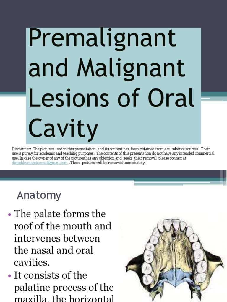 Premalignant Malignant Lesions of Oral Cavity | Human Head And Neck