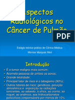 Cancer pulmão.ppt