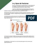Clasificación y tipos de fracturas