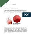 01.- Enfarte Agudo Do Miocardio