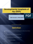 development dysplasia of hip