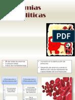 Anemias hemoliticas