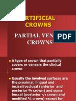 2 Artificialcrowns Partialveneercrowns Midterm2 120203195654 Phpapp01