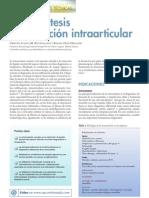 Artrocentesis e Infiltracion Intraarticular
