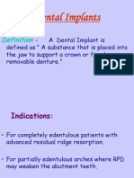 Dental Implants Perio