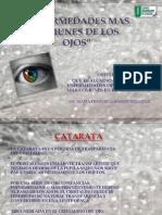 Enfermedades Mas Comunes de Los Ojos ANTMFSGIA S.N. VALIDA