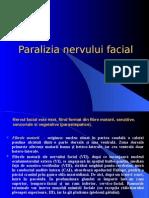 Paralizia Nervului Facial