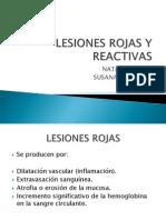 Expo Lesiones Rojas y Reactivas