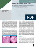 TB tonsil.pdf