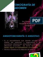 Angiotc de Abdomen
