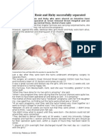 Conjoined Twins Article