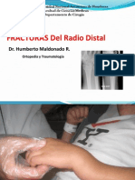 fracturasdelradiodistal-121130174210-phpapp02