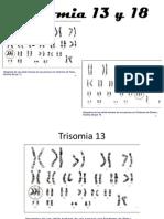 Trisomia 13 y 18