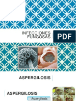 Infecciones fungosas
