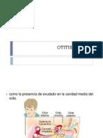 OTITIS.pptx