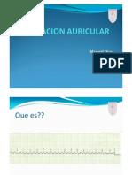 2Fibrilacion Auricular