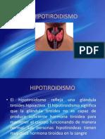 HIPOTIROIDISMO.ppt