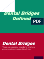 Dental Bridges Defined