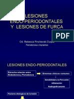 LESIONES endoperiodotales