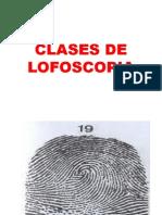 Clases de Lofoscopia