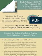 Solutions for Broken, Crooked or Cracked Teeth (St Petersburg Dentist 33710)
