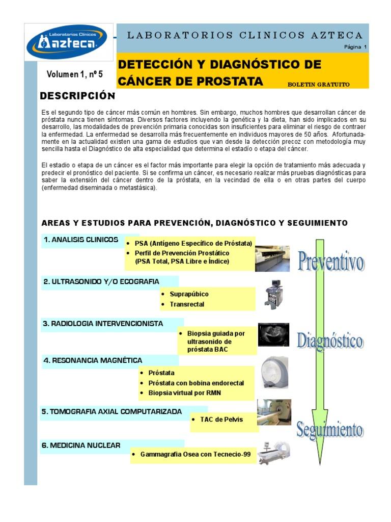 Antigen specific prostatei - prostatita.adonisfarm.ro