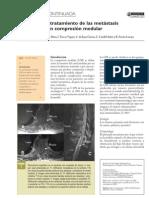 Compresion Medular Info