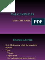 03 estenosis aortica