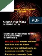 angina inestable 03-06-02 a